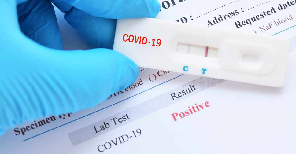 Covid 19 Time Changes Announced At Pcr Test Centres In Dubai Malls Arn News Centre Trending News Sports News Business News Dubai News Uae News Gulf News Latest News Arab News Sharjah
